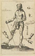 Johann Scultetus - Armamentarium chirurgicum XLIII tabulis